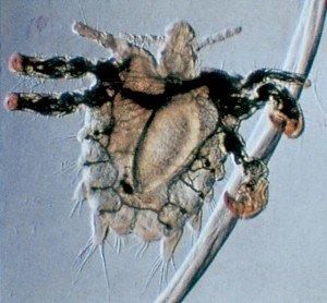 Die Klauen der Filzlaus umklammern ein Haar - Tierische Schädlinge in Haus und Lager - Seite 46